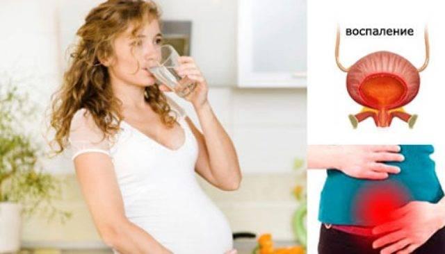 Как лечиться от цистита во время беременности