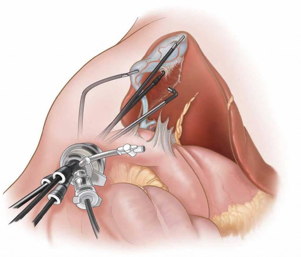 боли после лапароскопии желчного пузыря
