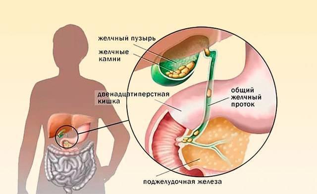 Желчная киста после удаления желчного пузыря