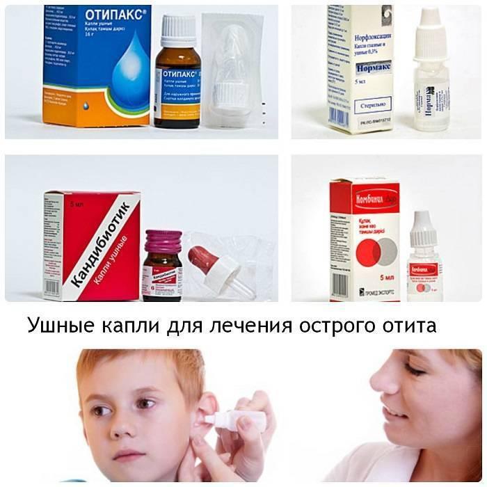 отит у детей лечение
