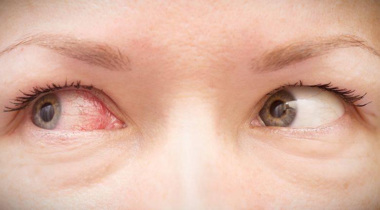 После бани болит глаз