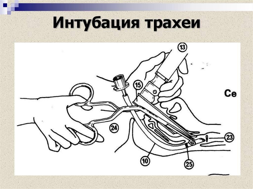 интубация трахеи методика
