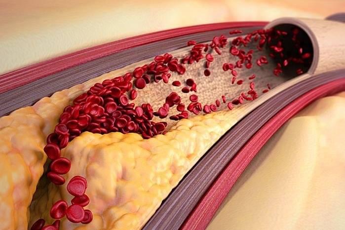 тромбы холестериновые бляшки