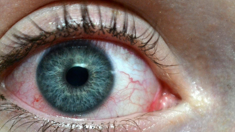 Ожог глаза первая помощь