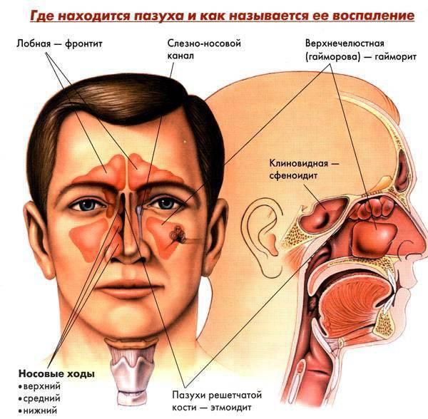 Может ли быть гайморит без насморка и заложенности носа?