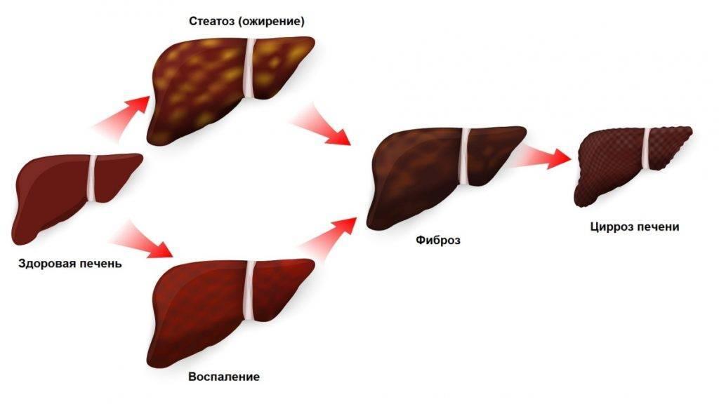 Какие лекарства нужно принимать при гепатите с