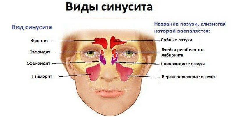 Причины боли в пазухах носа
