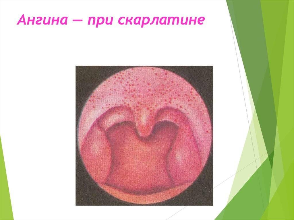 Красные точки в горле: причины заболеваний у взрослых и детей, их лечение