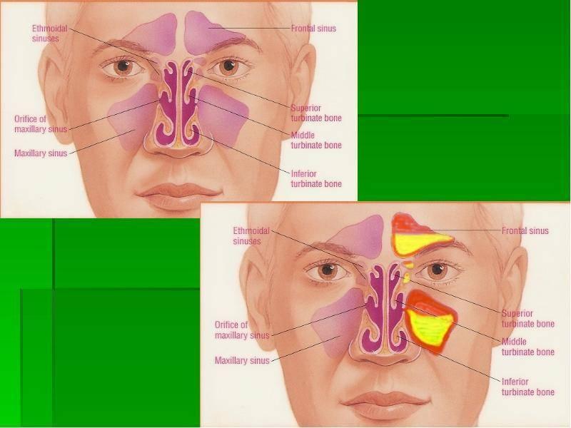 какие бывают болезни носа