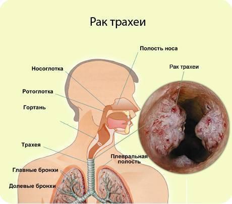 рак трахеи симптомы признаки
