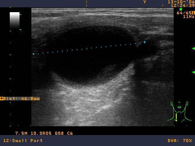 Коллоидный узел щитовидной железы