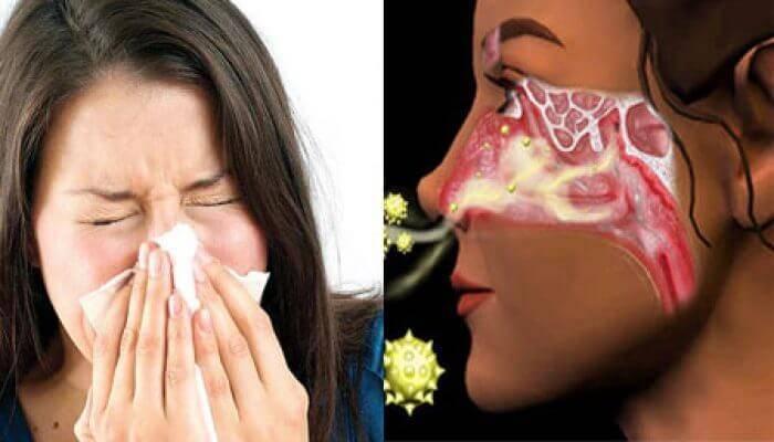 Как и чем снять отек слизистой носа при гайморите?