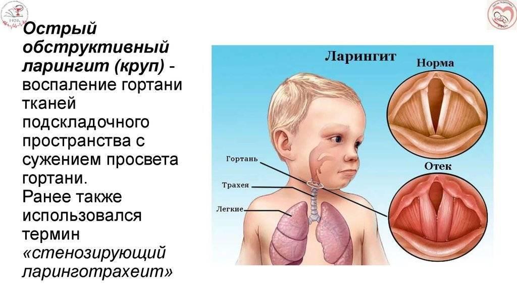 6 симптомов ларингита у детей, чем лечить