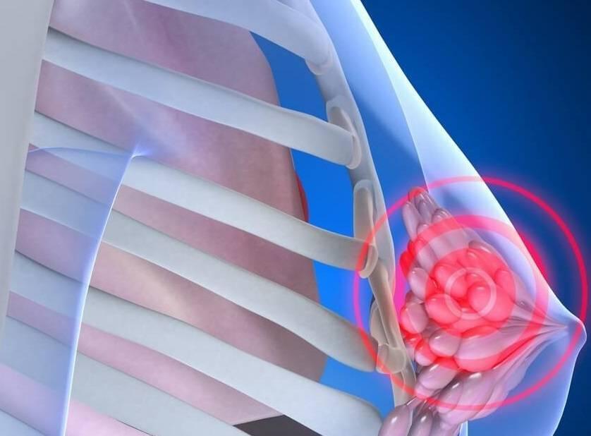 лечение фиброзной мастопатии молочной железы