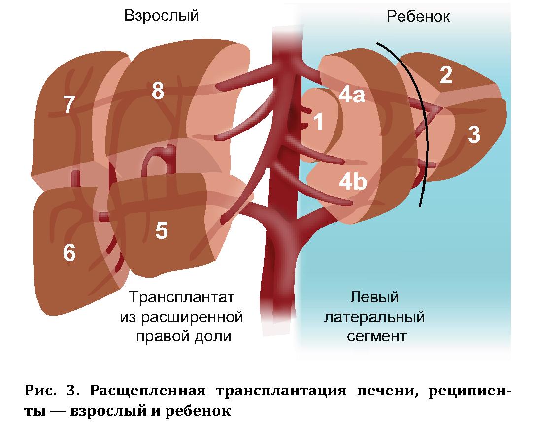 Пересадка печени: в каких случаях она нужна