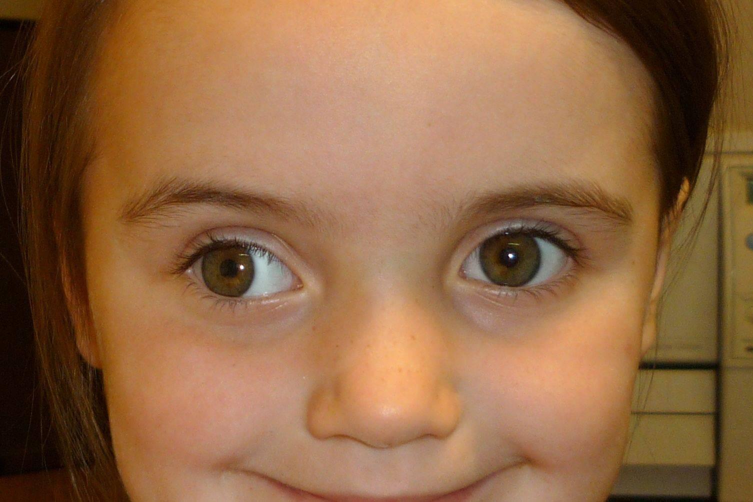 Амблиопия (синдром ленивого глаза) – что это такое, симптомы и лечение