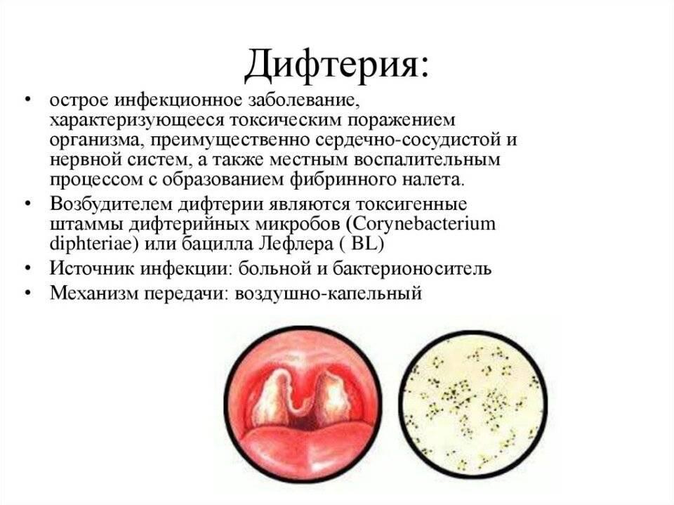 каковы симптомы дифтерии