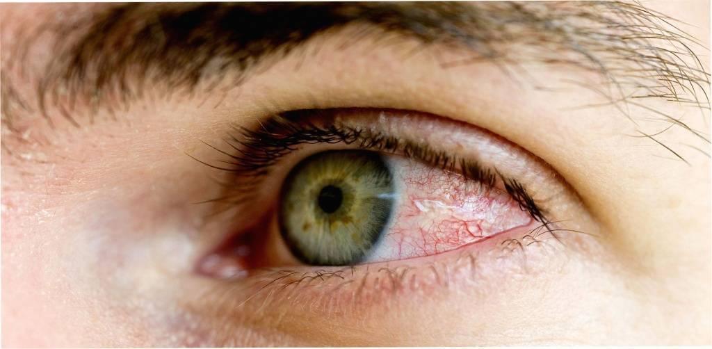 Травма глаза у ребенка - капли, куда обращаться, первая помощь, лечение
