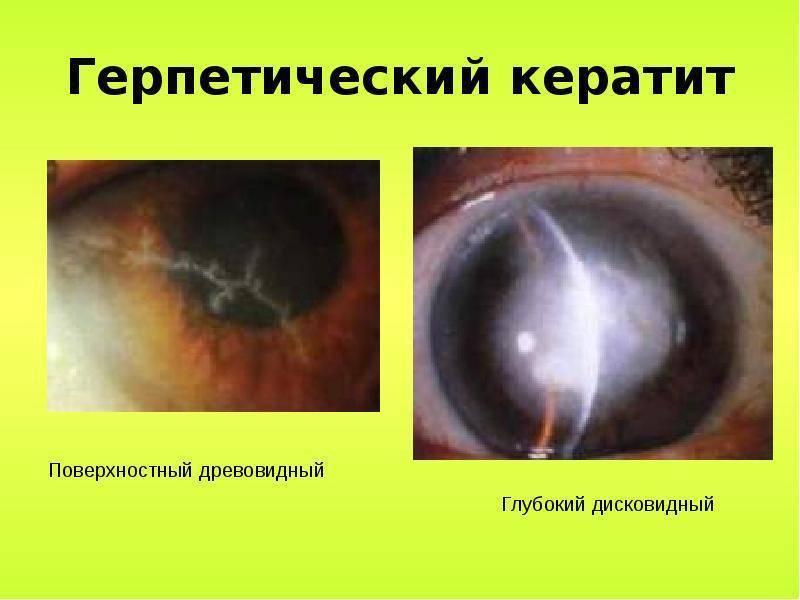 Герпетический кератит, причины, симптомы, лечение.