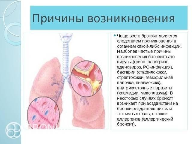 трахеит у детей симптомы