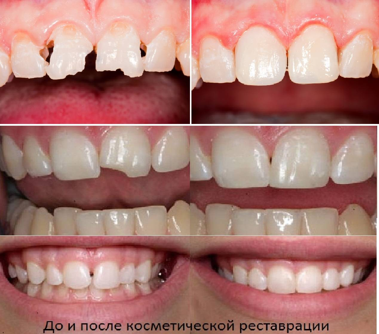Реставрация зубов: улыбайтесь, господа, улыбайтесь!