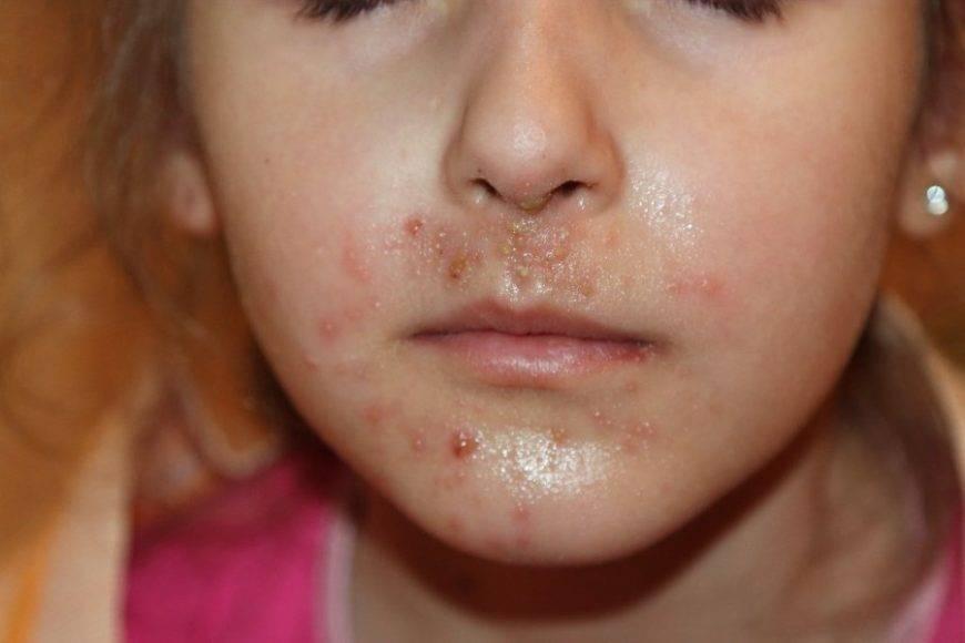 Симптомы и лечение стрептококка в носу и горле у детей, нормы бактерий в мазках, профилактические прививки