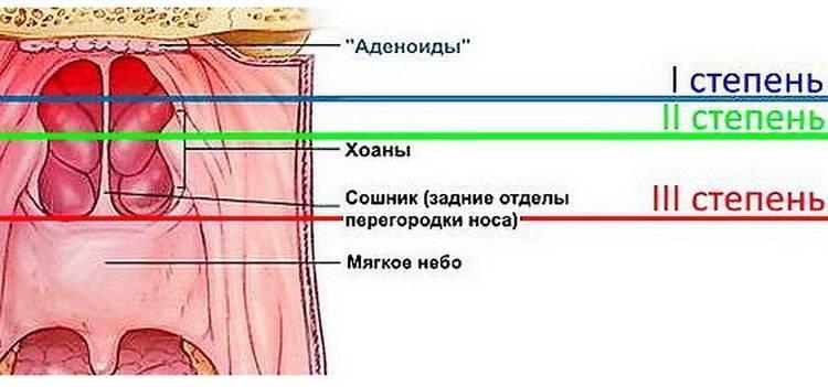 Аденоиды. симптомы, причины воспаления, лечение и удаление аденоидов. :: polismed.com