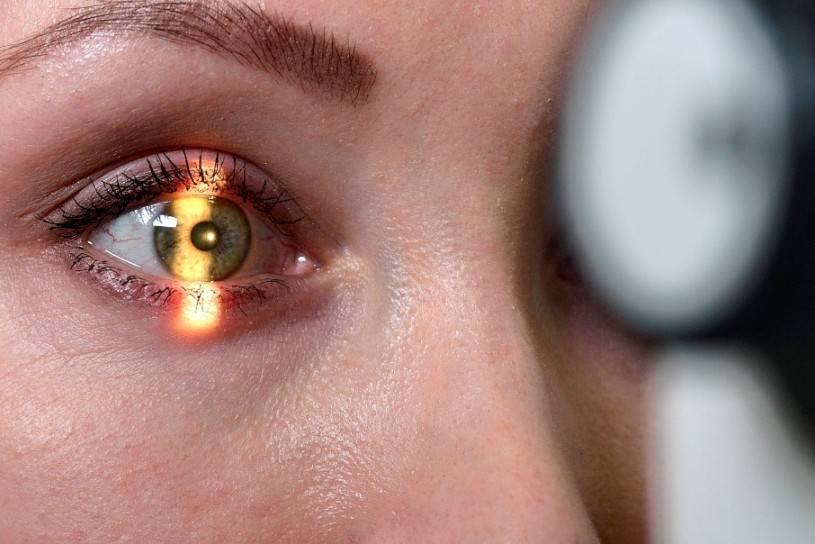 признаки рака глаза