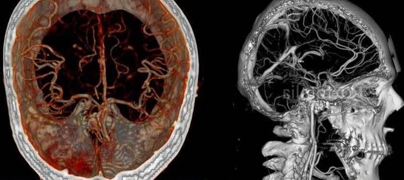 Атеросклероз сосудов головного мозга: симптомы, лечение, профилактика