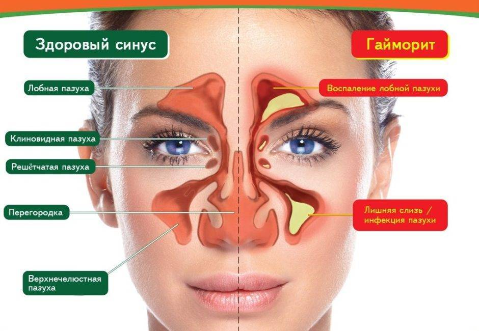 Массаж при гайморите, польза массажа носа при синусите и фронтите