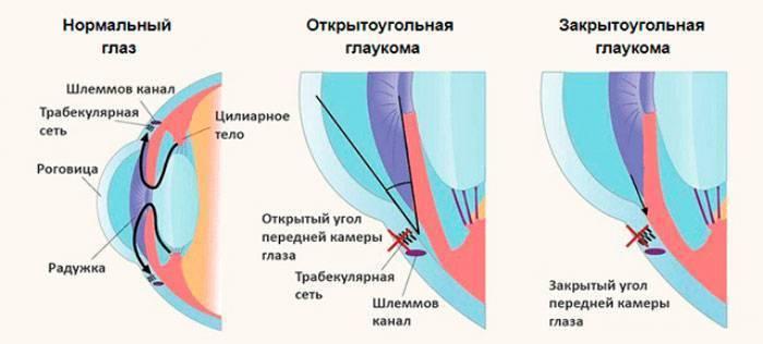 закрытоугольная и открытоугольная глаукома отличия