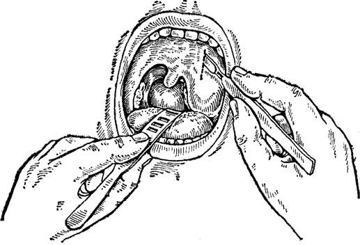 Внутри миндалин гной