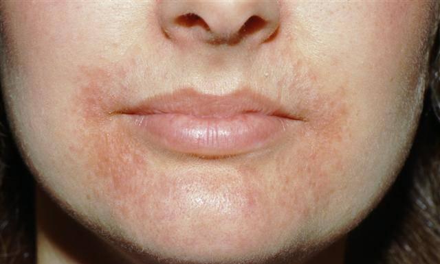 Крем от дерматита на губах