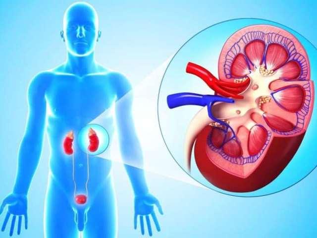 лечение пиелонефрита и цистита