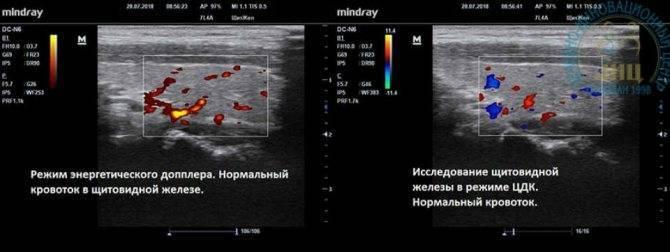 Кровоток внутри узла щитовидной железы | про щитовидку