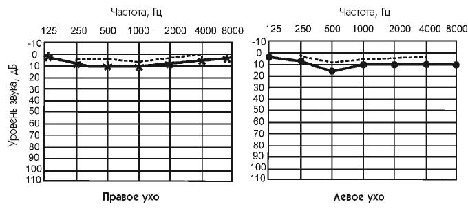 Тональная пороговая аудиометрия в москве: доступные цены, опытные врачи.