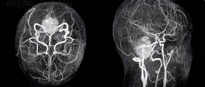 Атеросклероз сосудов головного мозга – можно ли предупредить инсульт?