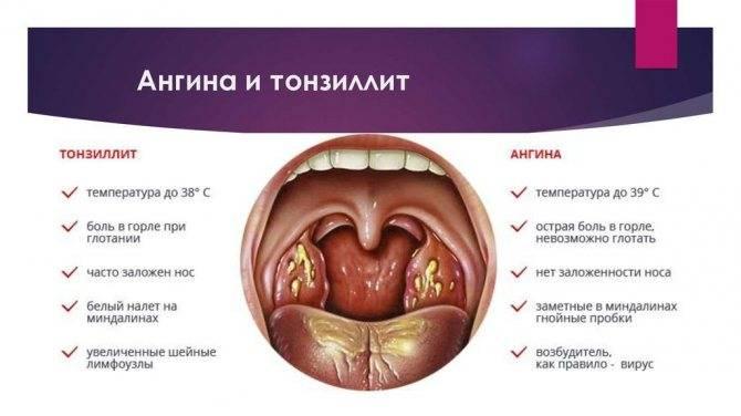 Как и чем лечить горло при беременности на 3 триместре?