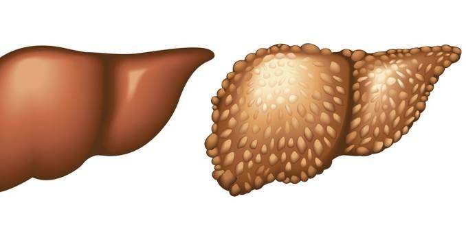 эхинококковая киста печени лечение
