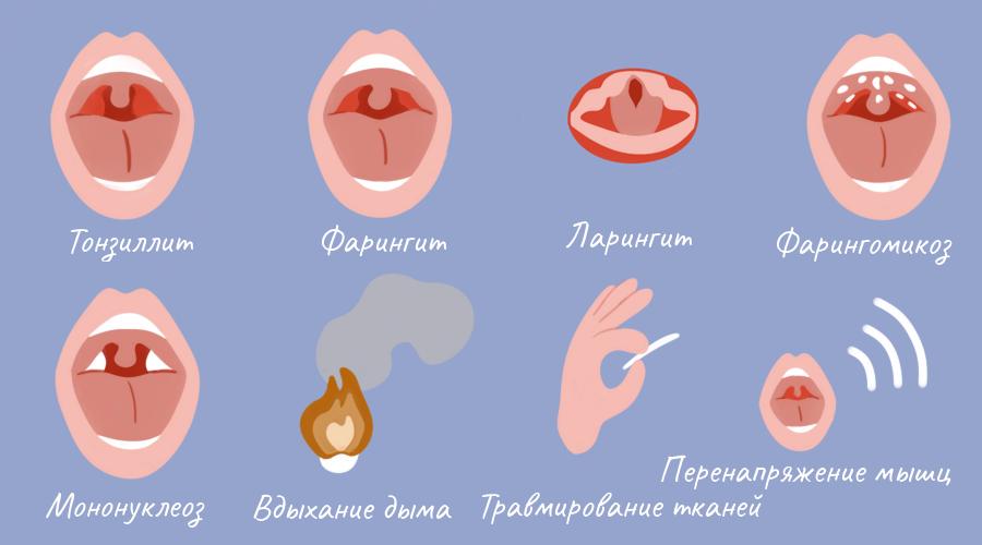 Почему болит горло? причины, виды, сочетание с другими симптомами, методы лечения