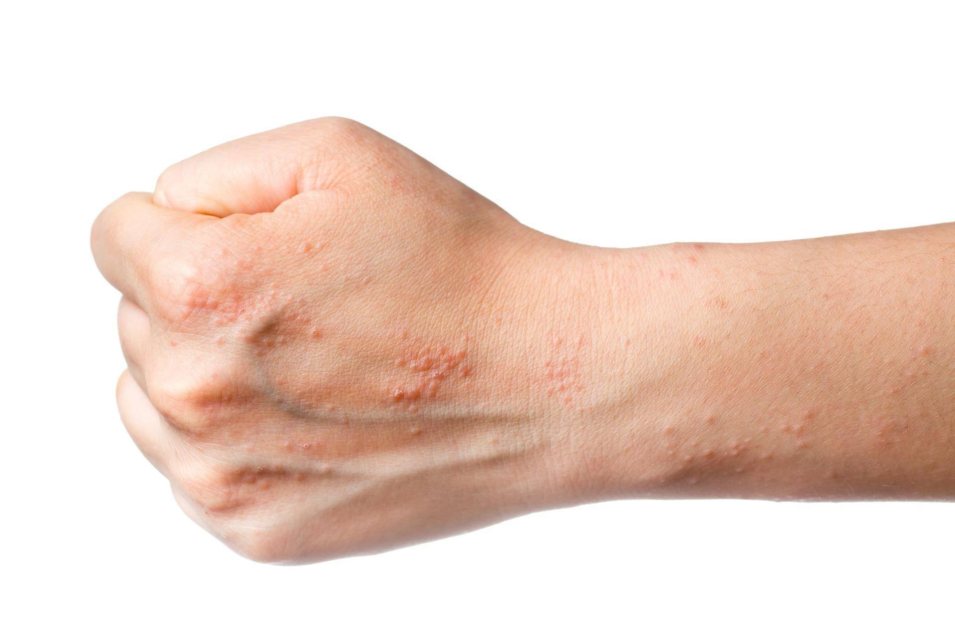 Как вылечить аллергический дерматит народными средствами в домашних условиях