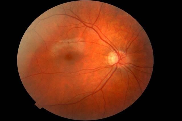 ангиопатия сетчатки глаза у новорожденного