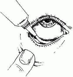 """Конъюнктивальный мешок глаза - строение и функции, диагностика и заболевания - сайт """"московская офтальмология"""""""