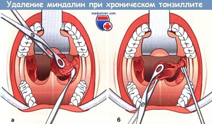 Способы удаления миндалин у взрослых