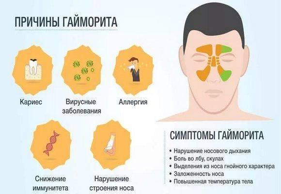гайморит у ребенка 3 лет симптомы