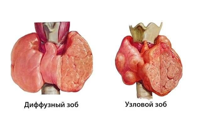 Узловая гиперплазия щитовидной железы что это