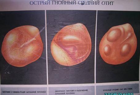 лечение катаральный отит