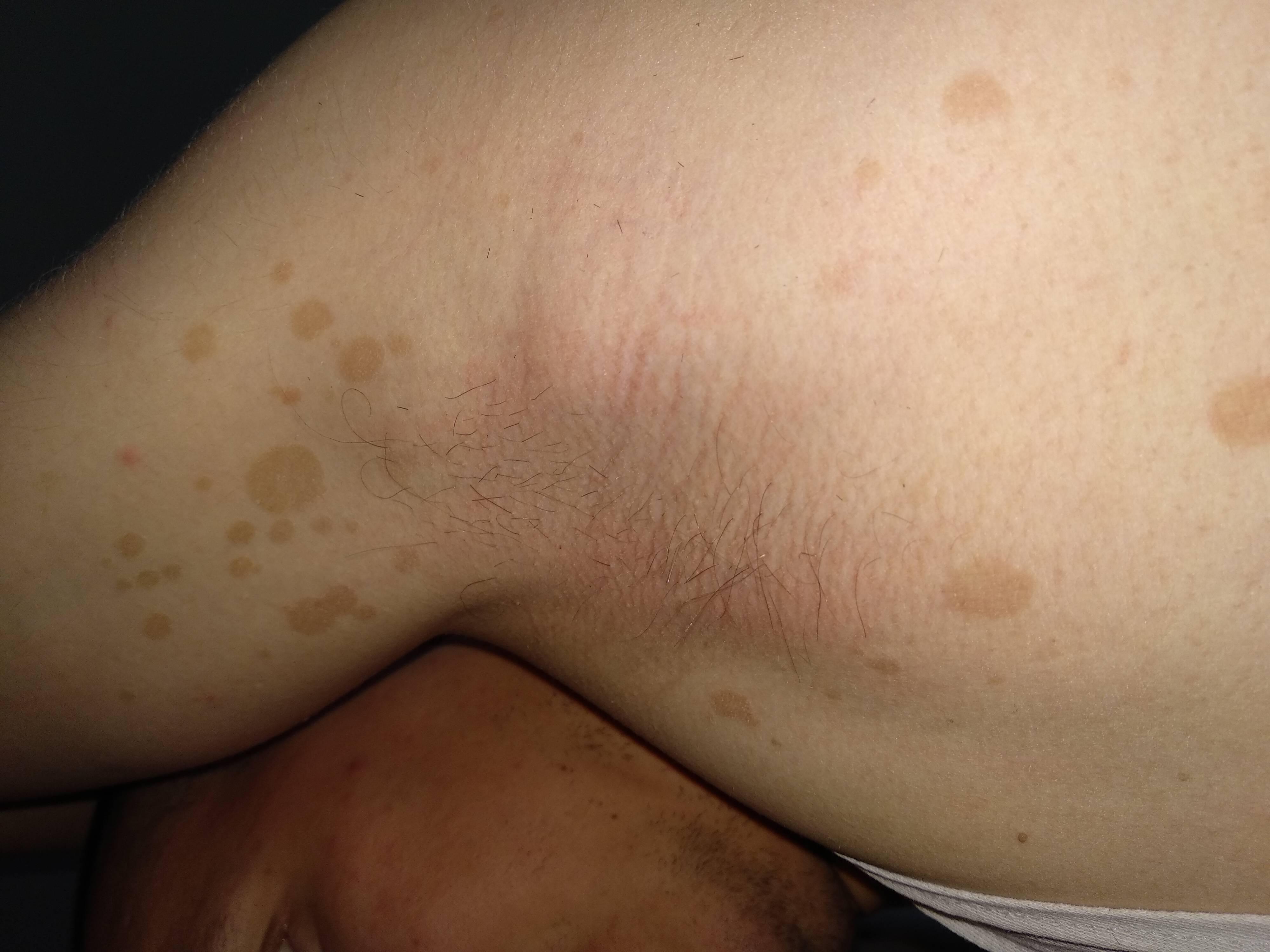 Псориаз на шее, спине, груди, животе и вокруг пупка