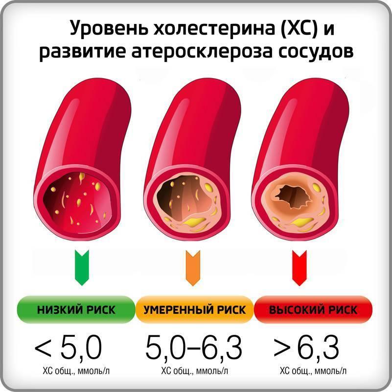 определение холестерина в сыворотке крови