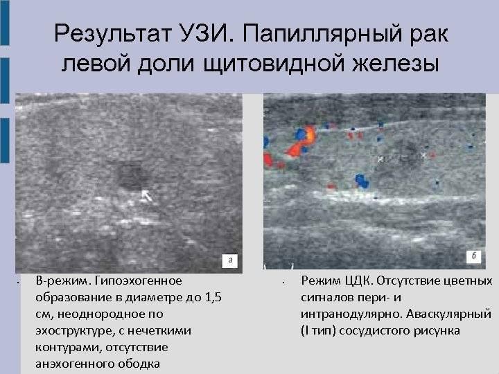 изоэхогенный узел щитовидной железы лечение